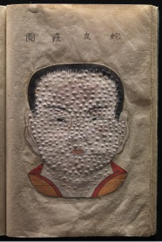 Textured watercolour illustration from a Japanese work on smallpox entitled Toshin seiyo [The essentials of smallpox], ca. 1720 © Wellcome Library, London